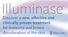 Illuminase: the new procedure to treat melasma and brown discoloration of the skin