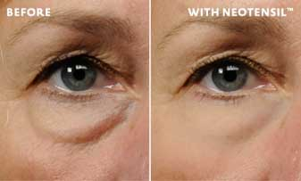 Neotensil under eye bag shapewear film