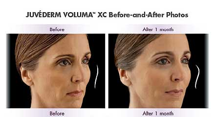 FDA-approved Juvederm Volumna XC restores lost cheek volume due to aging